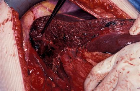 cysts in liver picture 2