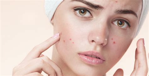 how to treat dark acne marks picture 8
