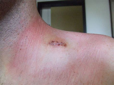 about skin rashes on the neck area picture 14