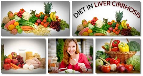 cirrhosis of the liver diet picture 5