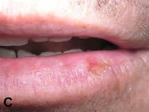 what does lip cancer look like picture 11