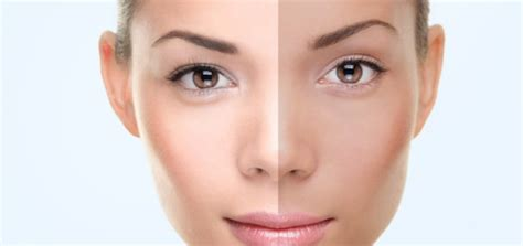 skin whitening picture 5