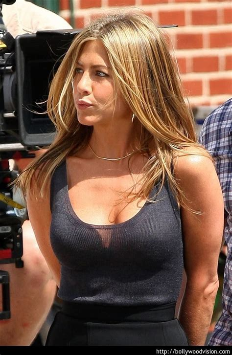 anniston breast augmentation picture 5