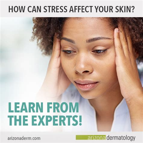 stress amd your skin picture 3