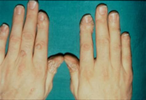 warts on cuticles picture 3