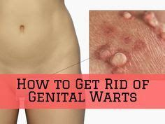 how to get rid of genital warts picture 6