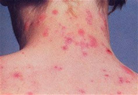 acne neck picture 14