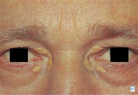 skin conditions around eyes picture 1
