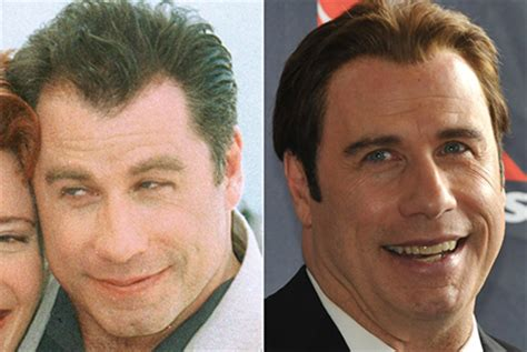 John travolta hair replacement picture 1