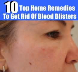 how to get rid of a skin bacterial picture 3