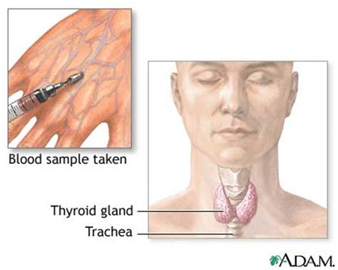 blood clot on thyroid gland picture 6