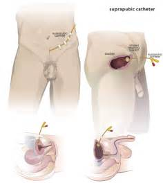 do penis insertions cause infection picture 19
