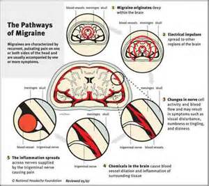 headaches and forehead stiffness in diabetics is this picture 11
