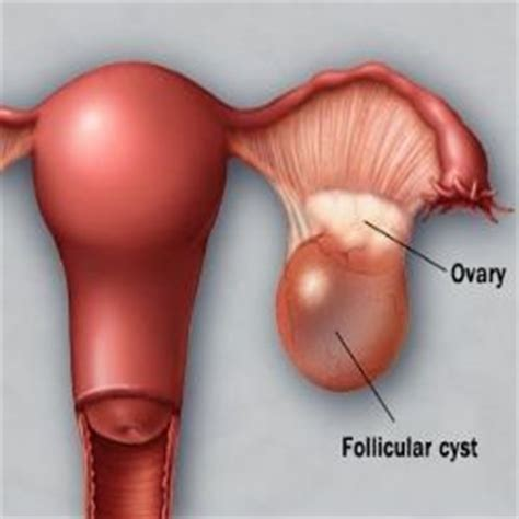 can essiac tea help with vaginal cysts picture 11