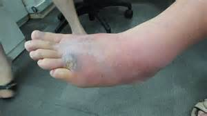 celluliteous infection picture 2