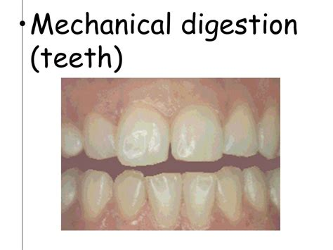 digestion teeth picture 3