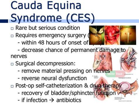 cauda equina bladder picture 17