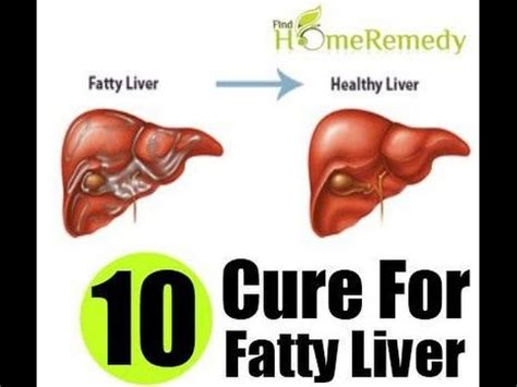 ano ang fatty liver picture 2