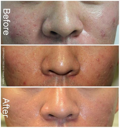 solution for acne scars picture 3