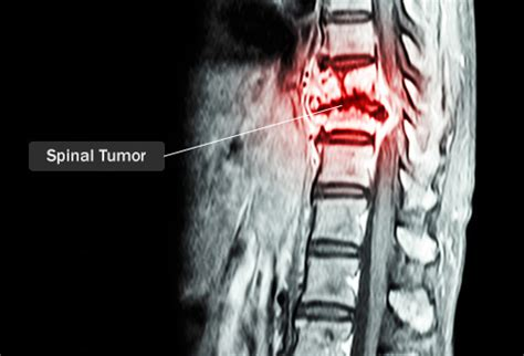 Neck back and leg pain caused by tumor picture 13