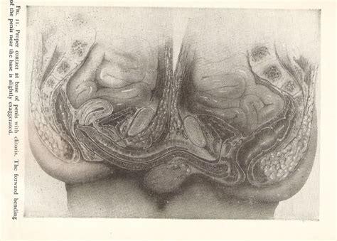 can moringa cause penis captivus picture 1