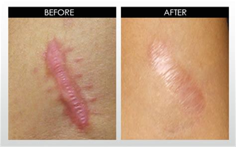 body burn mark removal picture 11