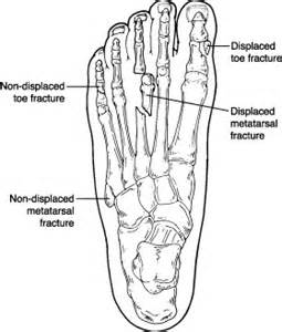 probable fracture of 5th toe joint picture 18
