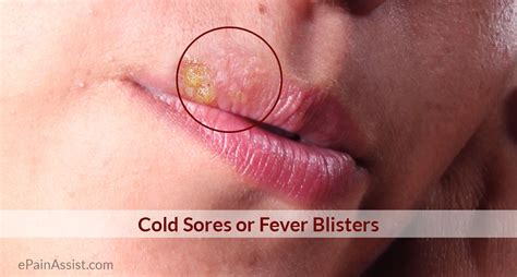 what causes blisters herpes picture 5