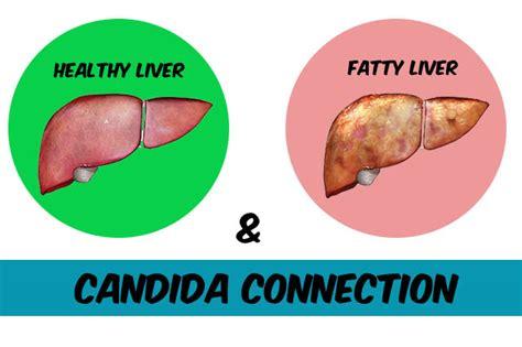 fatty liver picture 13