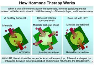 hormone replacement therapy picture 7