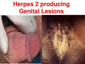what is genital herpes picture 15