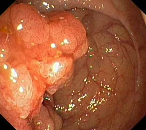 young with colon polyp picture 9
