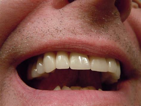 cuspid teeth picture 19