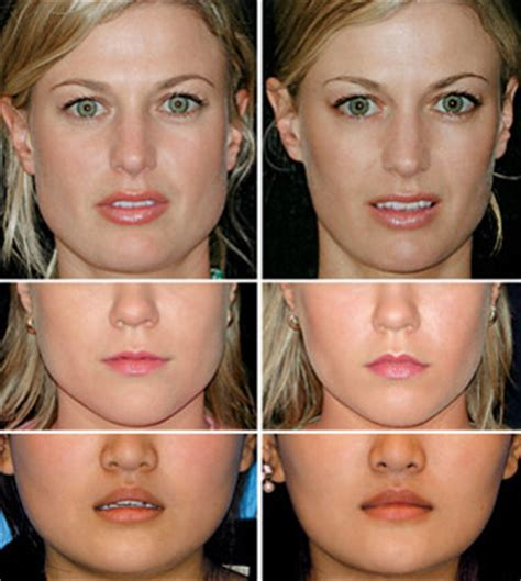 pre face lift skin care line picture 3