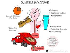 diet for dumping syndrome picture 1