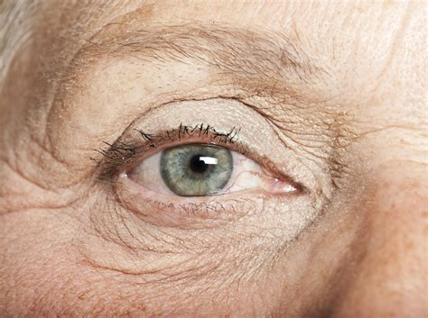 aging eyes picture 7