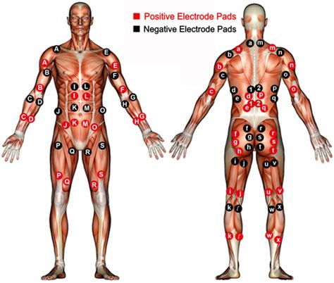 where to place electros for electrical stimulation of picture 10