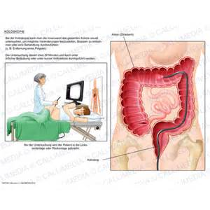 perforated el after colonoscopy picture 19