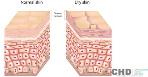 flaky skin picture 3