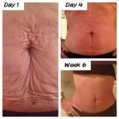 nu skin stretch marks picture 1