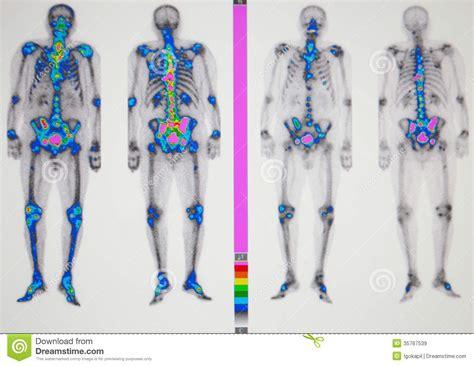 Prostate bone metastasis picture 2