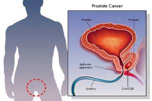 does big boy prostate stay in picture 3
