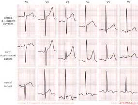 Dizziness and low blood pressure picture 10