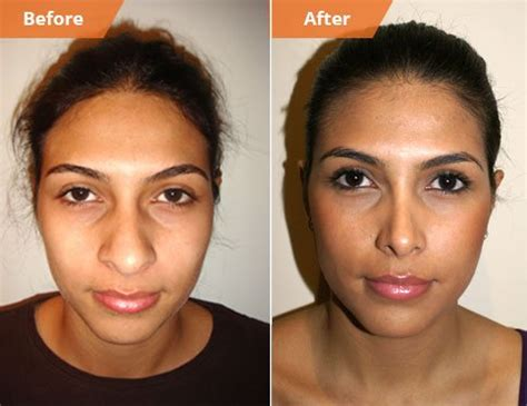 how much does lip augmentation cost picture 9