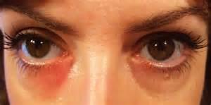 allergy in skin around eyes picture 18