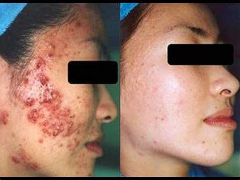 mabisang gamot para mawala ang pimples picture 17