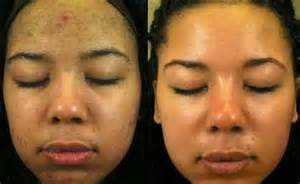 acne bleach picture 3