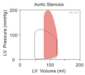 Aortic stenosis blood pressure readings picture 3
