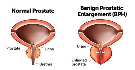 treatment of enlarged prostates through indian herbal picture 9