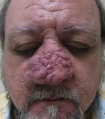 acne rosacea phymatous picture 10